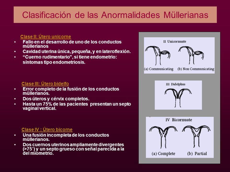 Clasificación de las Anormalidades Müllerianas