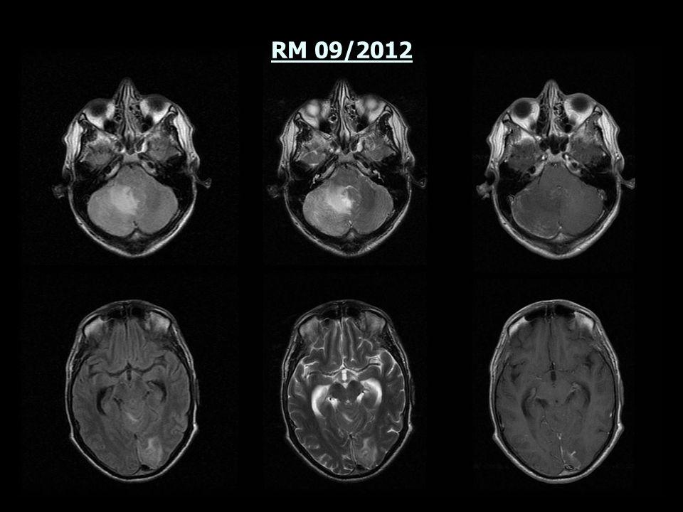 Diciembre 2012: Suspensión de corticoides.