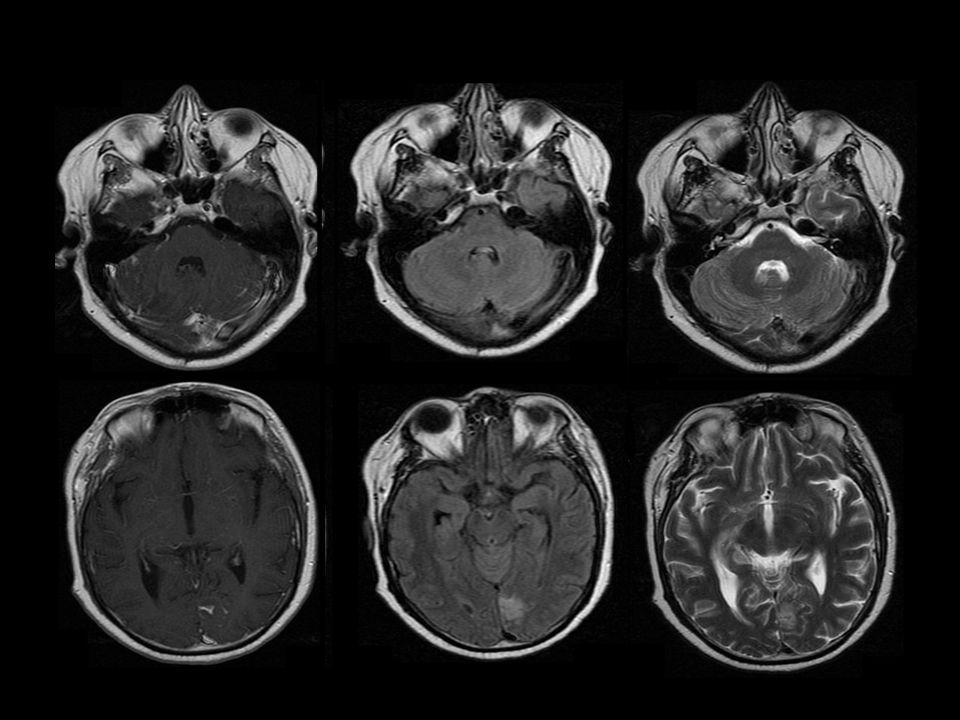 Octubre 2013: Se realiza biopsia occipital.