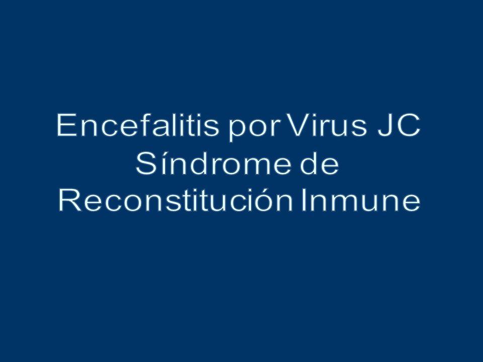 Infección por Virus JC en SNC