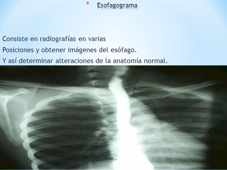 Consiste en radiografías en varias