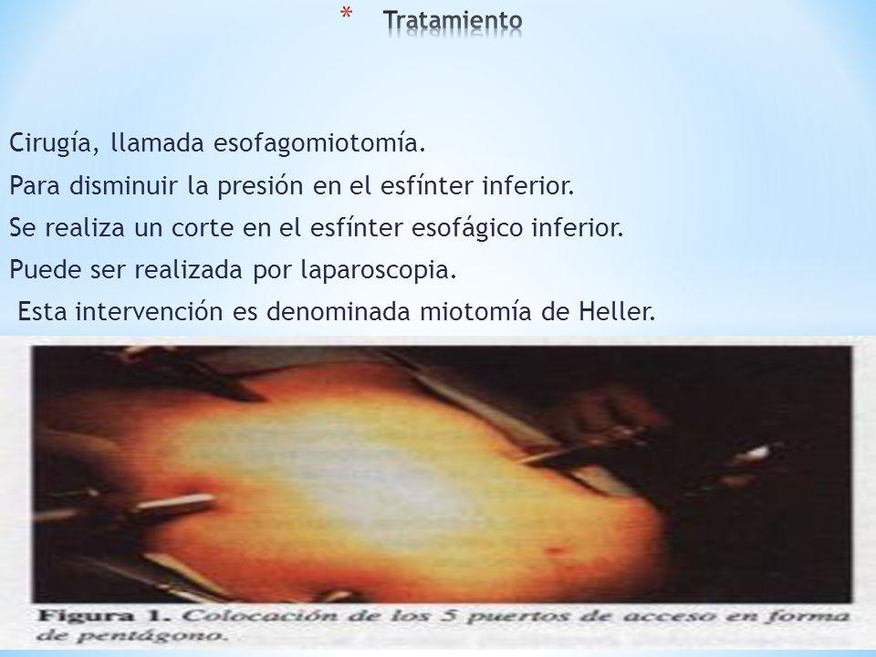 Cirugía, llamada esofagomiotomía.