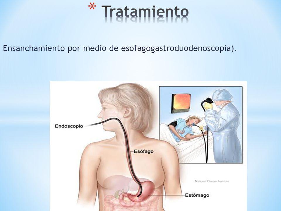 Ensanchamiento por medio de esofagogastroduodenoscopia).
