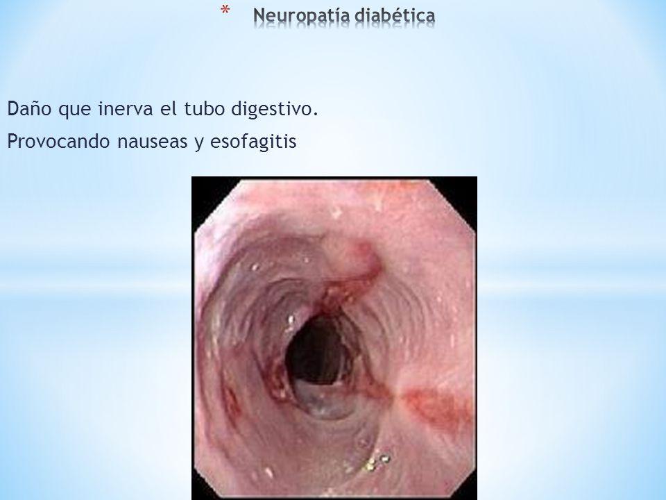 Daño que inerva el tubo digestivo. Provocando nauseas y esofagitis