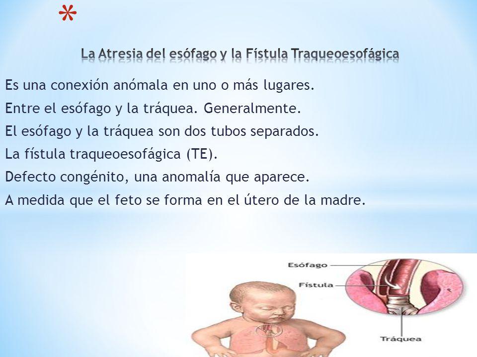 La Atresia del esófago y la Fístula Traqueoesofágica