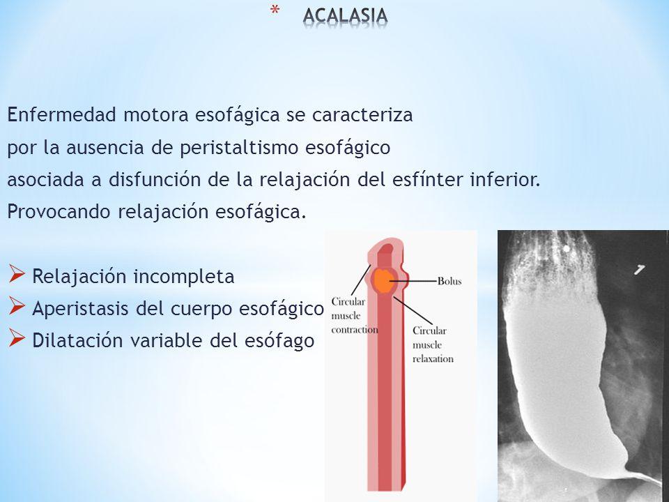 Enfermedad motora esofágica se caracteriza