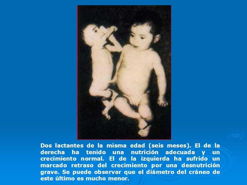 Dos lactantes de la misma edad (seis meses)