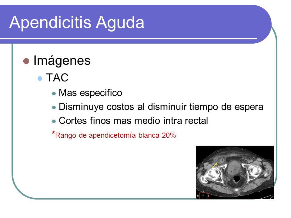 Apendicitis Aguda Imágenes TAC Mas especifico