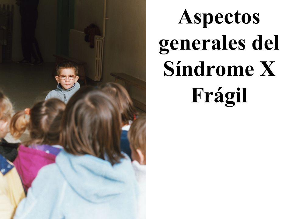 Aspectos generales del Síndrome X Frágil