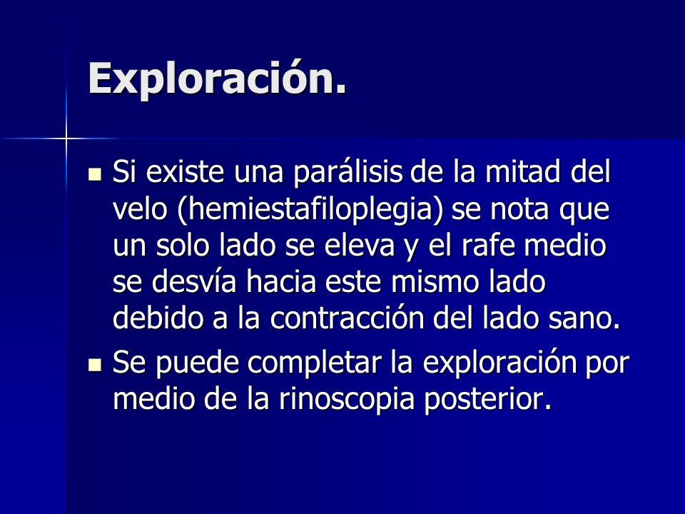 Exploración.