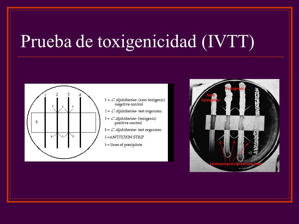 Prueba de toxigenicidad (IVTT)