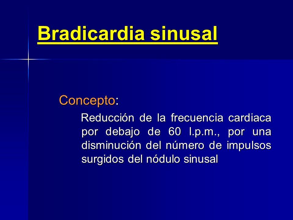 Bradicardia sinusal Concepto: