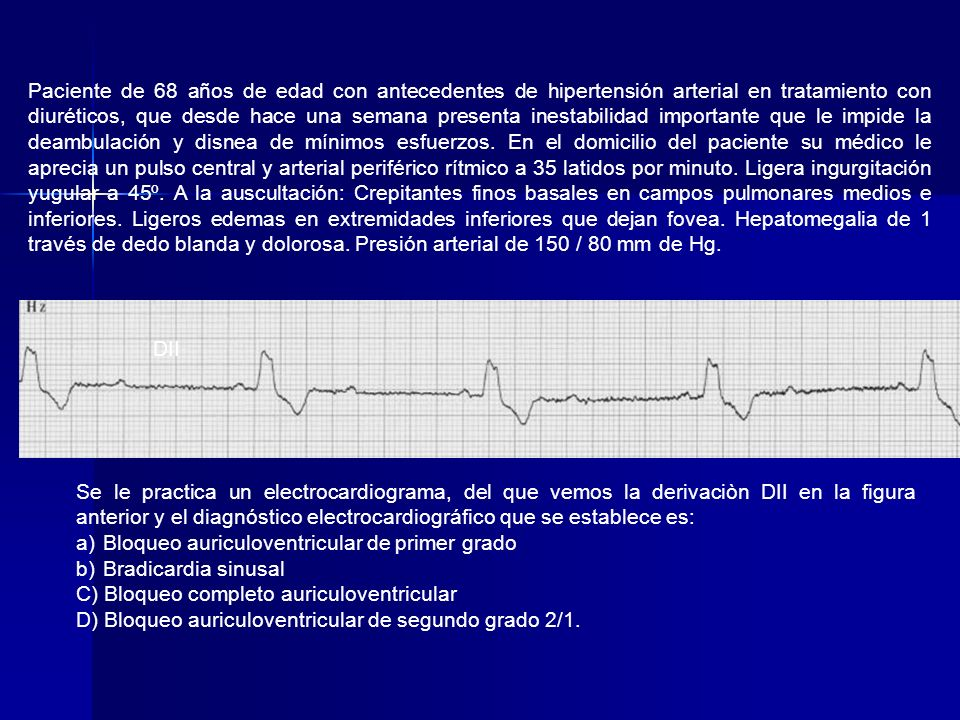 Paciente de 68 años de edad con antecedentes de hipertensión arterial en tratamiento con diuréticos, que desde hace una semana presenta inestabilidad importante que le impide la deambulación y disnea de mínimos esfuerzos. En el domicilio del paciente su médico le aprecia un pulso central y arterial periférico rítmico a 35 latidos por minuto. Ligera ingurgitación yugular a 45º. A la auscultación: Crepitantes finos basales en campos pulmonares medios e inferiores. Ligeros edemas en extremidades inferiores que dejan fovea. Hepatomegalia de 1 través de dedo blanda y dolorosa. Presión arterial de 150 / 80 mm de Hg.