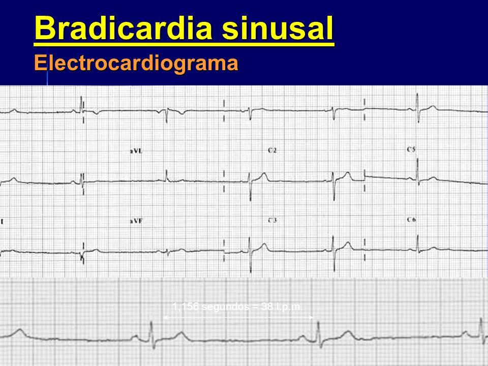 Bradicardia sinusal Electrocardiograma