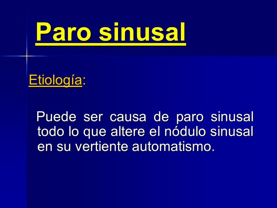 Paro sinusal Etiología: