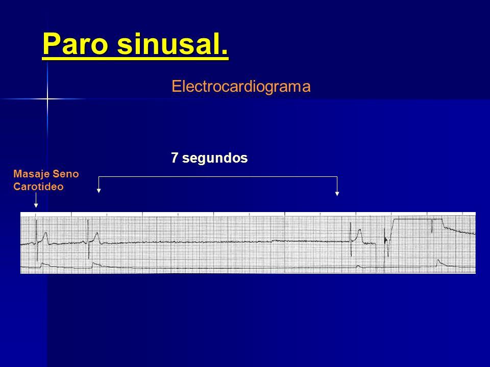 Paro sinusal. Electrocardiograma 7 segundos Masaje Seno Carotideo