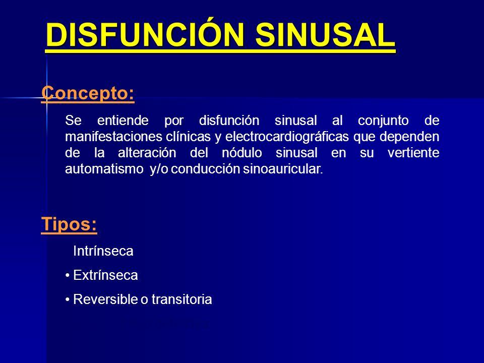 DISFUNCIÓN SINUSAL Concepto: Tipos: