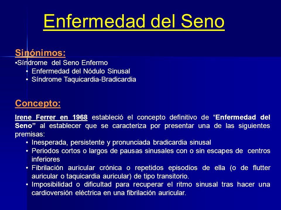 Enfermedad del Seno Sinónimos: Concepto: Síndrome del Seno Enfermo