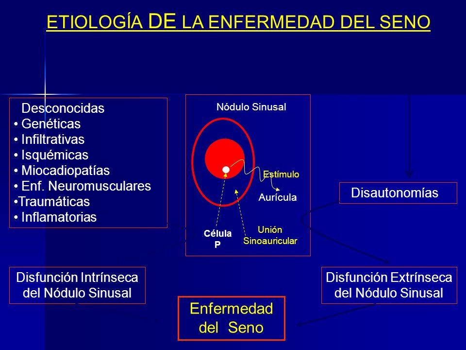 ETIOLOGÍA DE LA ENFERMEDAD DEL SENO