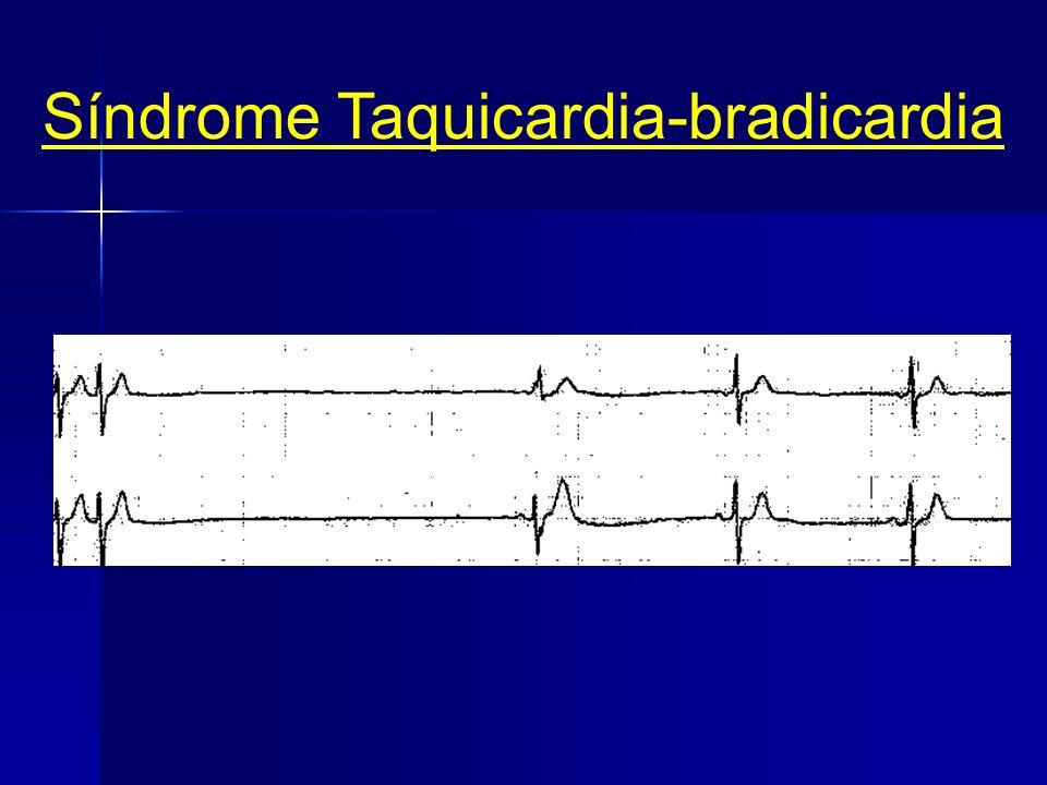 Síndrome Taquicardia-bradicardia