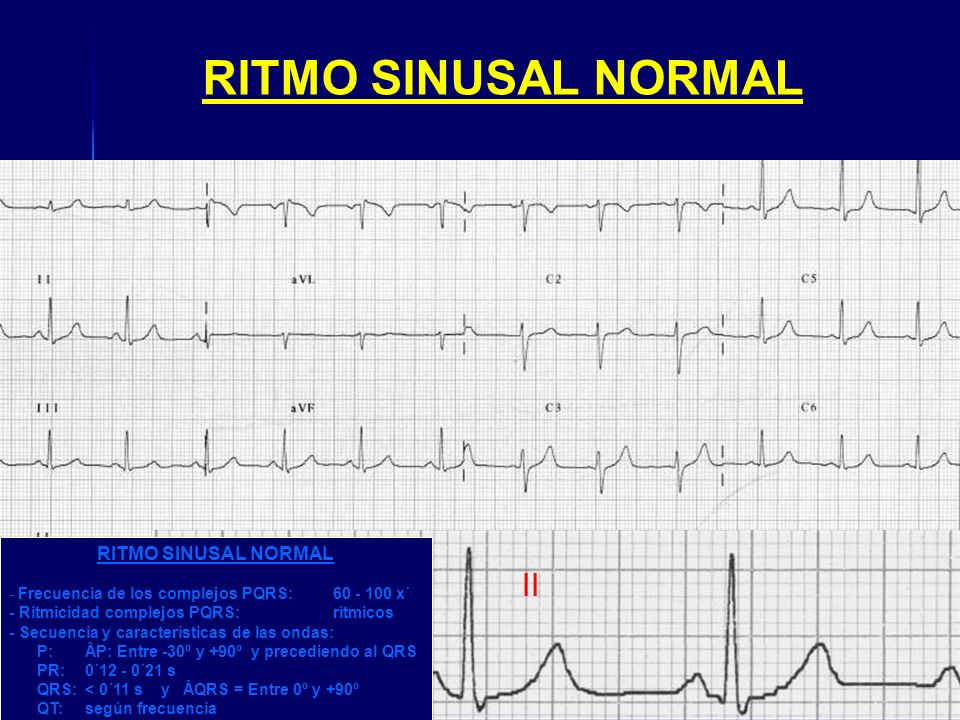 RITMO SINUSAL NORMAL II