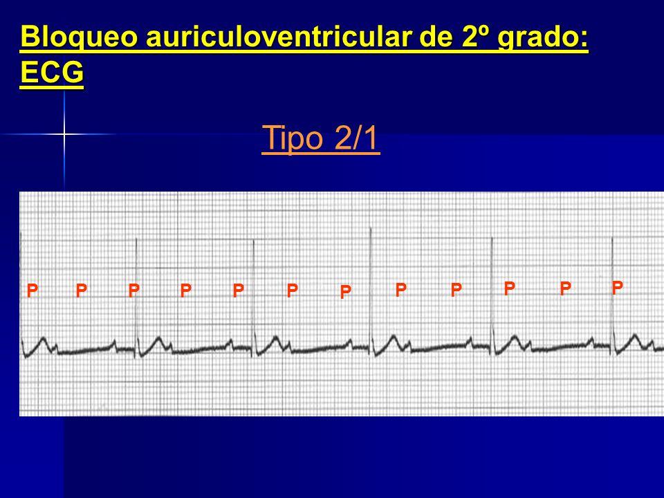 Tipo 2/1 Bloqueo auriculoventricular de 2º grado: ECG P