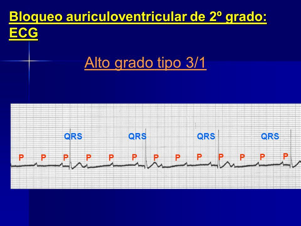 Alto grado tipo 3/1 Bloqueo auriculoventricular de 2º grado: ECG QRS