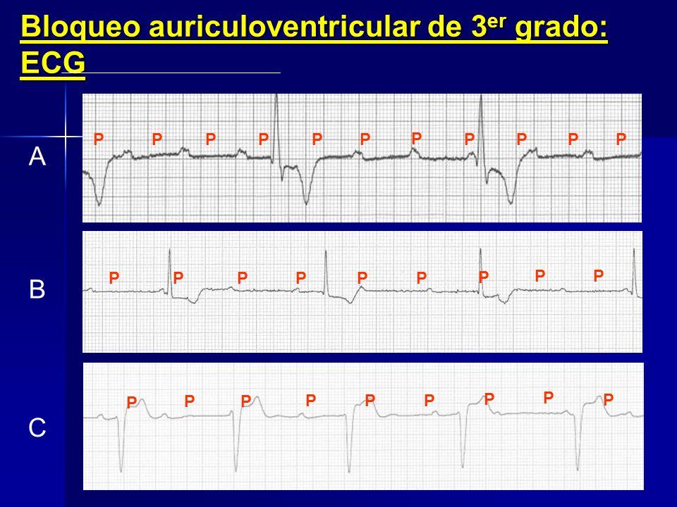 Bloqueo auriculoventricular de 3er grado: ECG