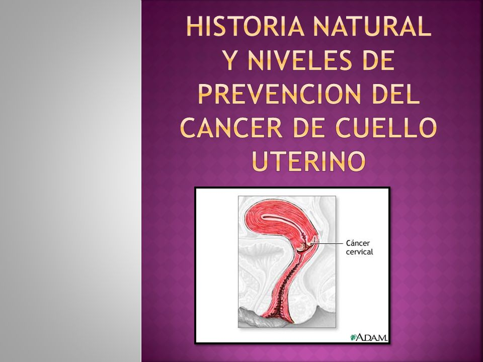 HISTORIA NATURAL Y NIVELES DE PREVENCION DEL CANCER DE CUELLO UTERINO