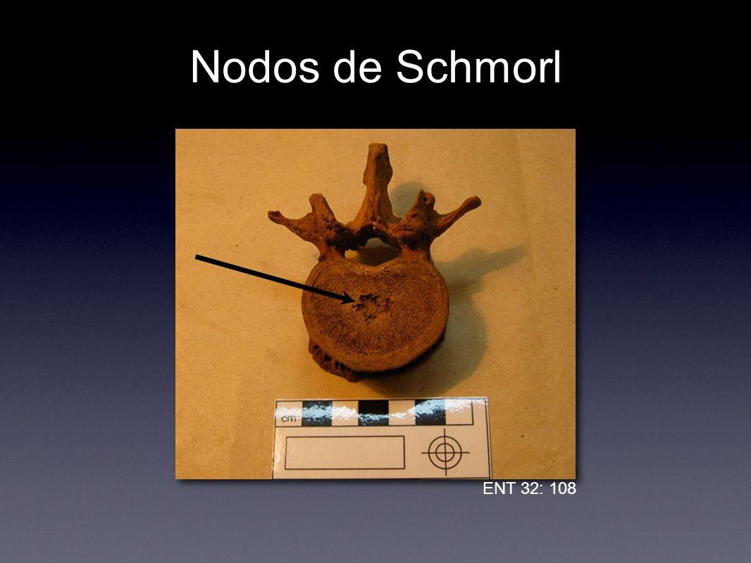 Nodos de Schmorl ENT 32: 108
