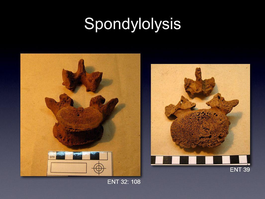 Spondylolysis ENT 39 ENT 32: 108