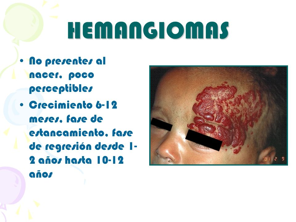 HEMANGIOMAS No presentes al nacer, poco perceptibles