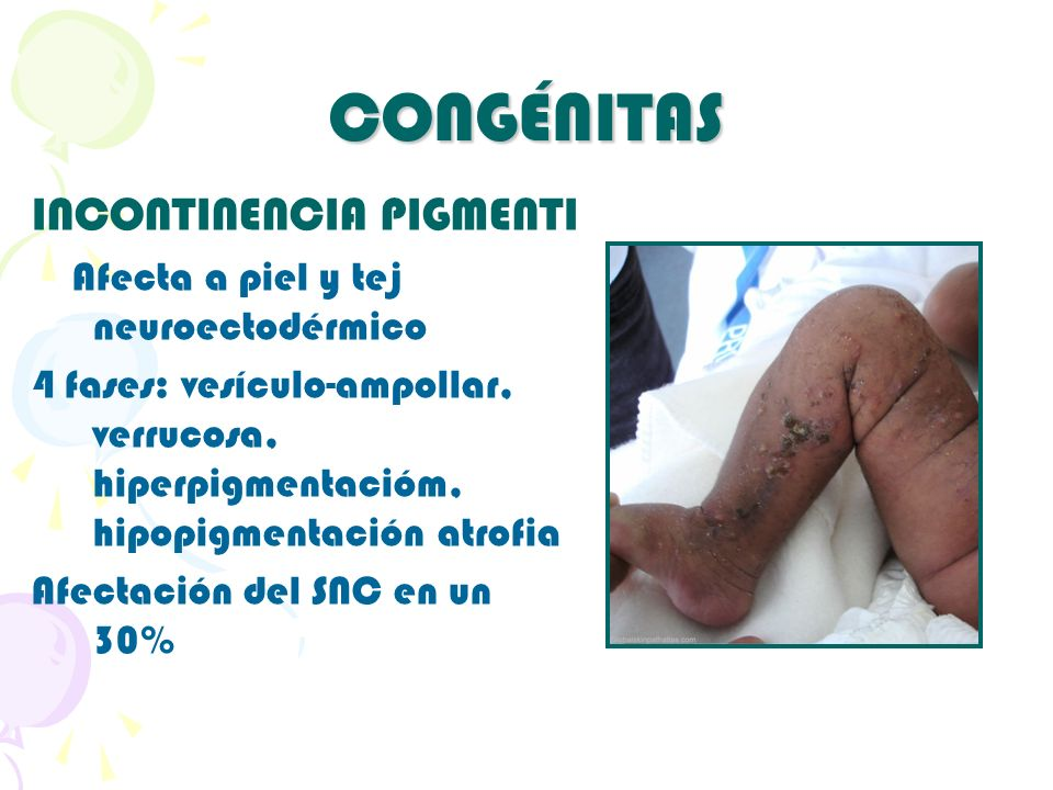 CONGÉNITAS INCONTINENCIA PIGMENTI Afecta a piel y tej neuroectodérmico