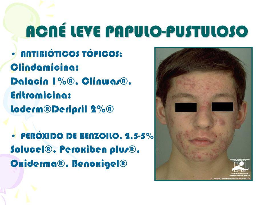 ACNÉ LEVE PAPULO-PUSTULOSO