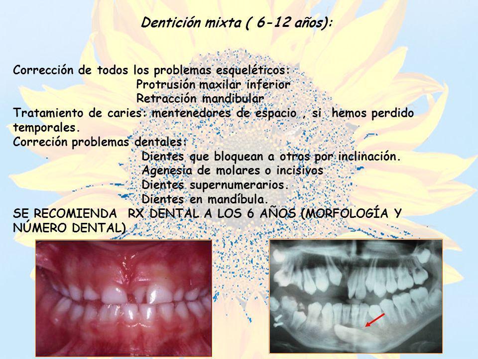 Dentición mixta ( 6-12 años):