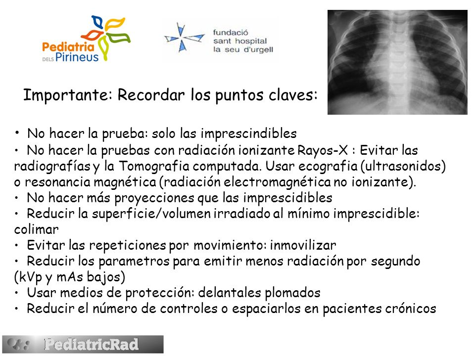 Importante: Recordar los puntos claves: