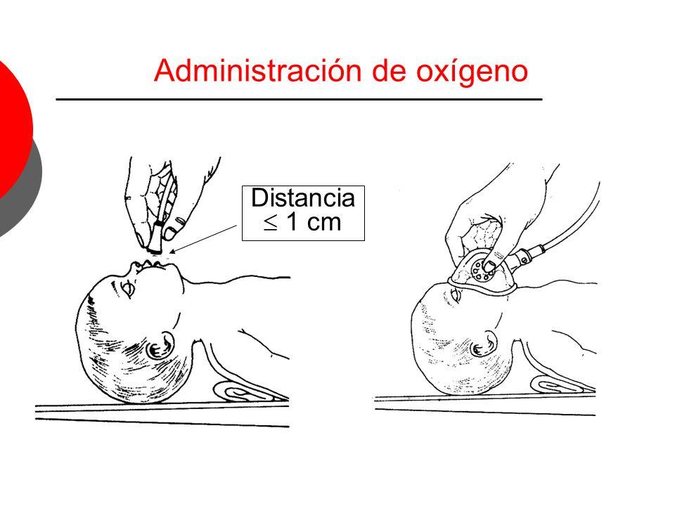 Administración de oxígeno