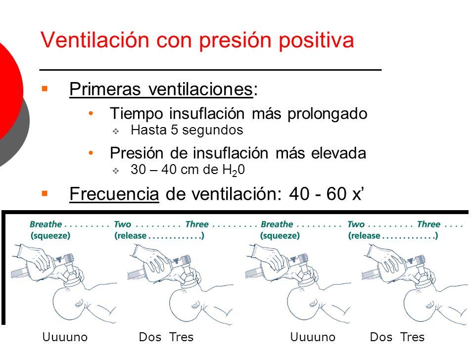 Ventilación con presión positiva