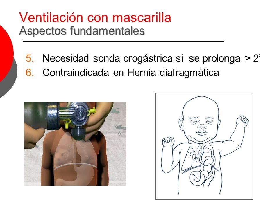 Ventilación con mascarilla Aspectos fundamentales