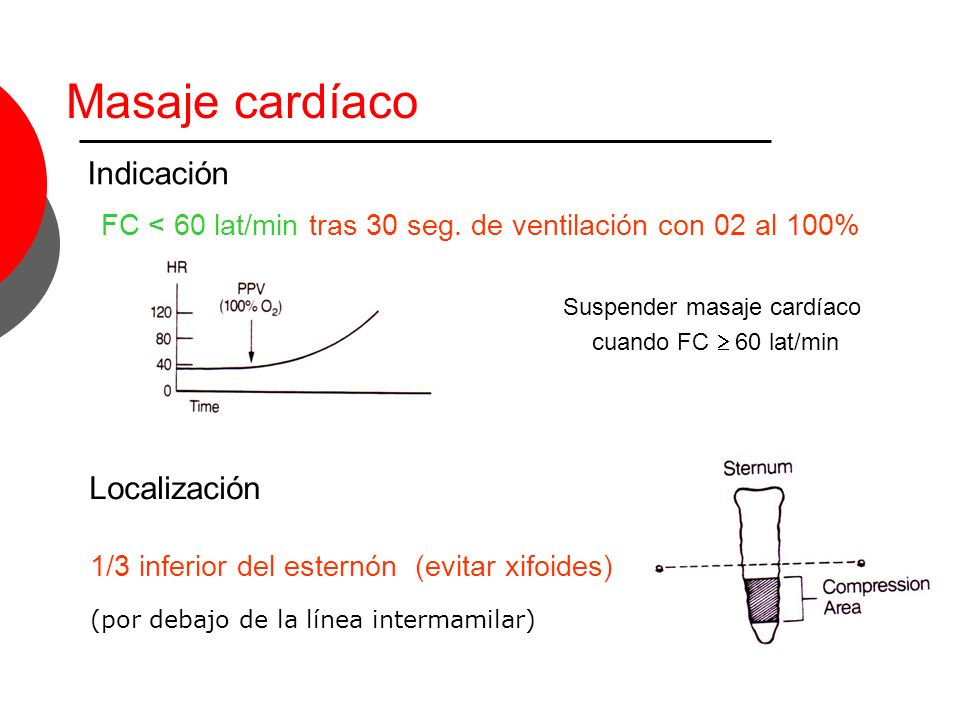 Masaje cardíaco Indicación Localización