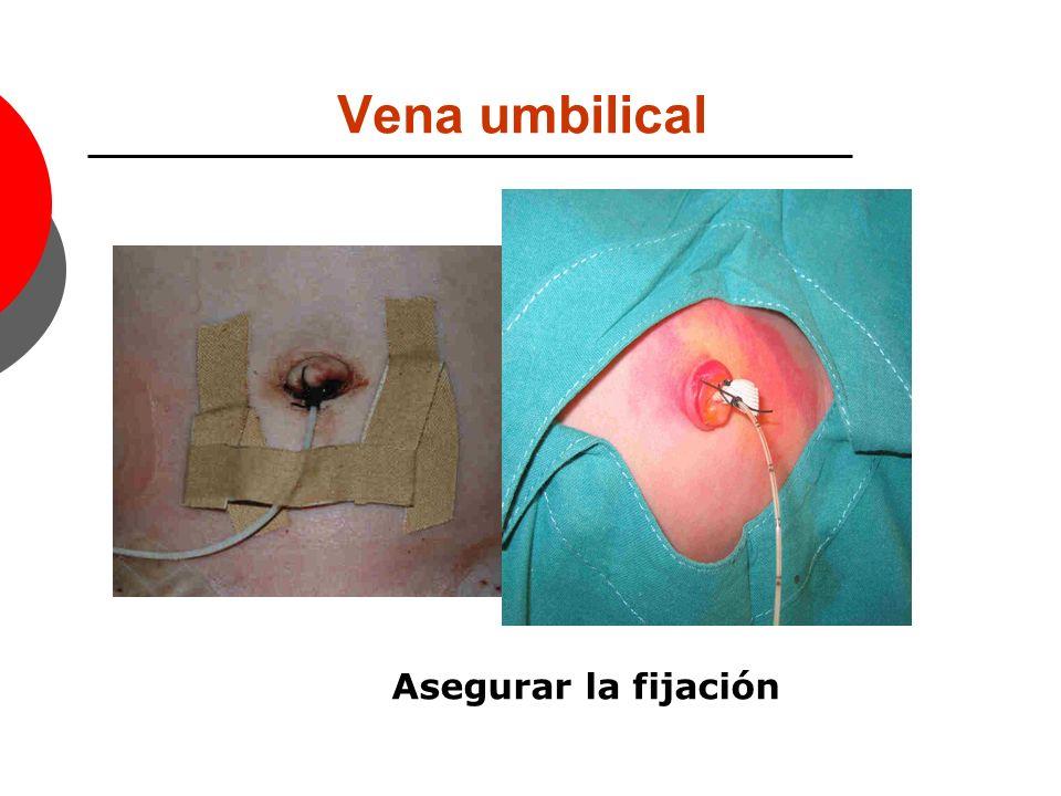 Vena umbilical Se ubica a 3-5 cm y lo fijaremos para evitar movilizaciones accidentales e iniciaremos la perfusión del líquido o fármaco indicado.