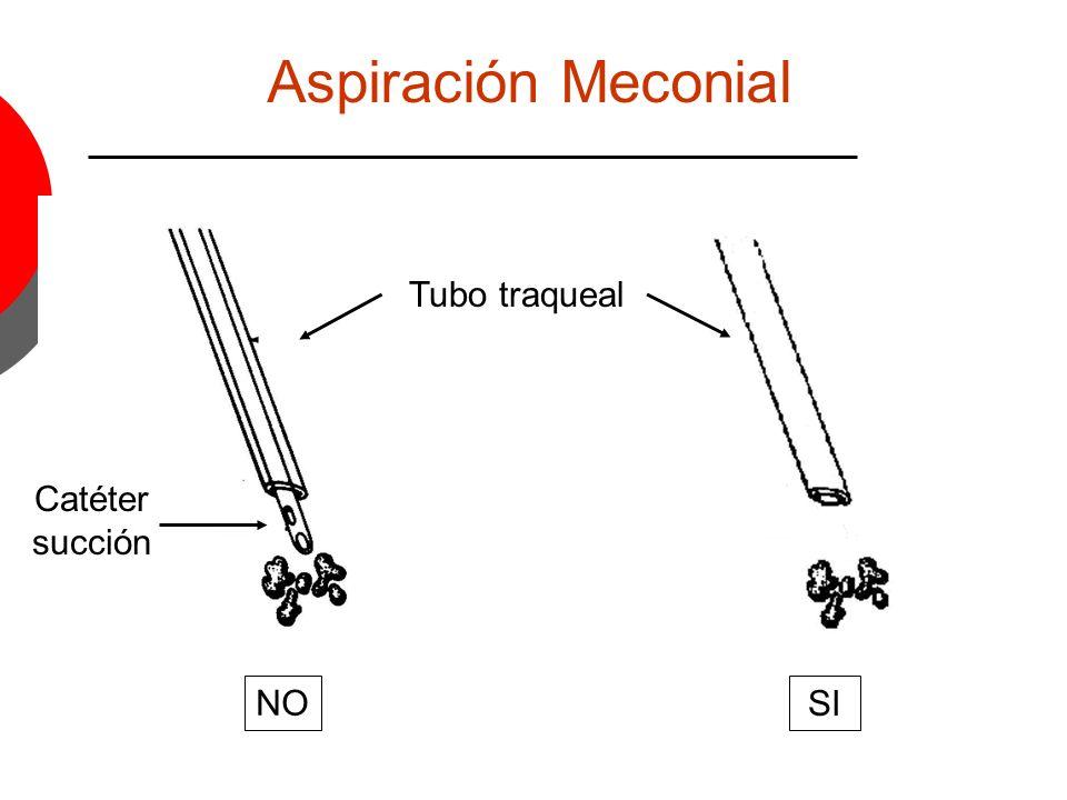 Aspiración Meconial Tubo traqueal Catéter succión NO SI