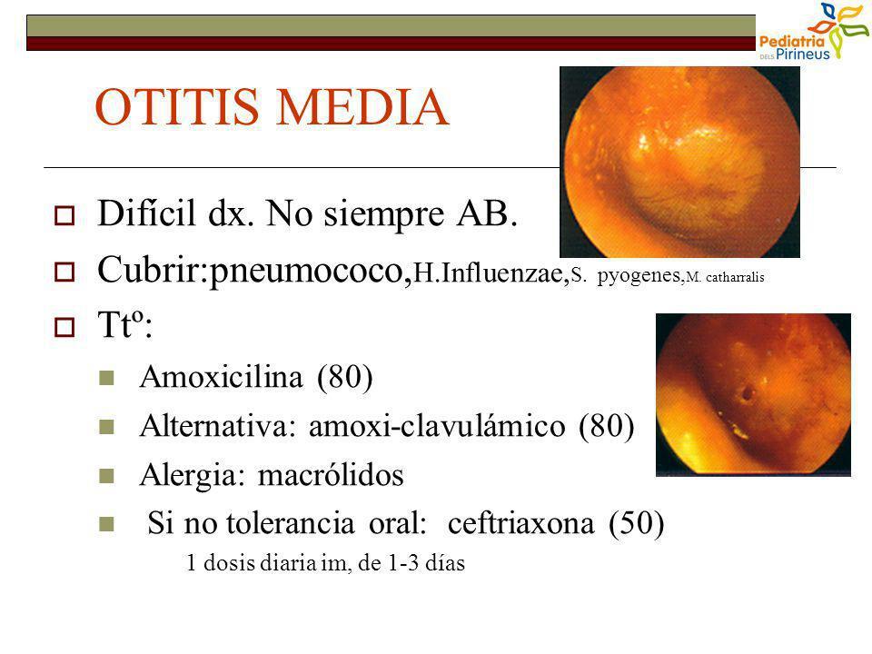 OTITIS MEDIA Difícil dx. No siempre AB.