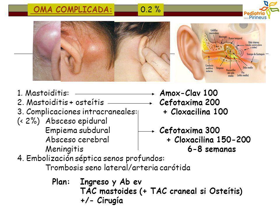 OMA COMPLICADA: 0.2 % 1. Mastoiditis: 2. Mastoiditis + osteítis. 3. Complicaciones intracraneales: