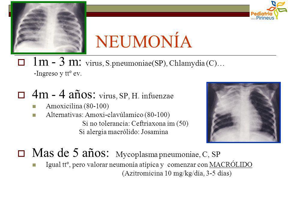 NEUMONÍA 1m - 3 m: virus, S.pneumoniae(SP), Chlamydia (C)…