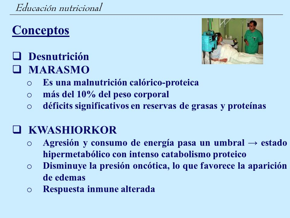 Conceptos Desnutrición MARASMO KWASHIORKOR Educación nutricional
