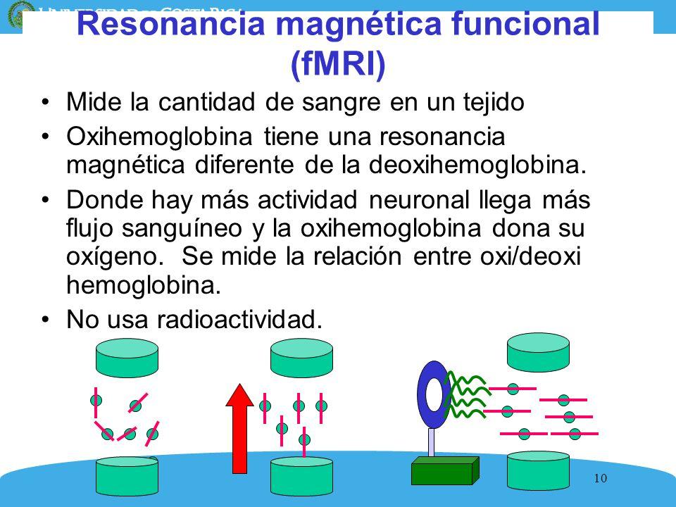 Resonancia magnética funcional (fMRI)