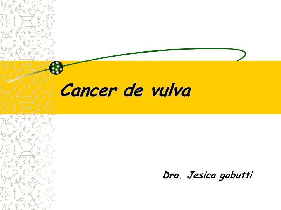 Cancer de vulva Dra. Jesica gabutti