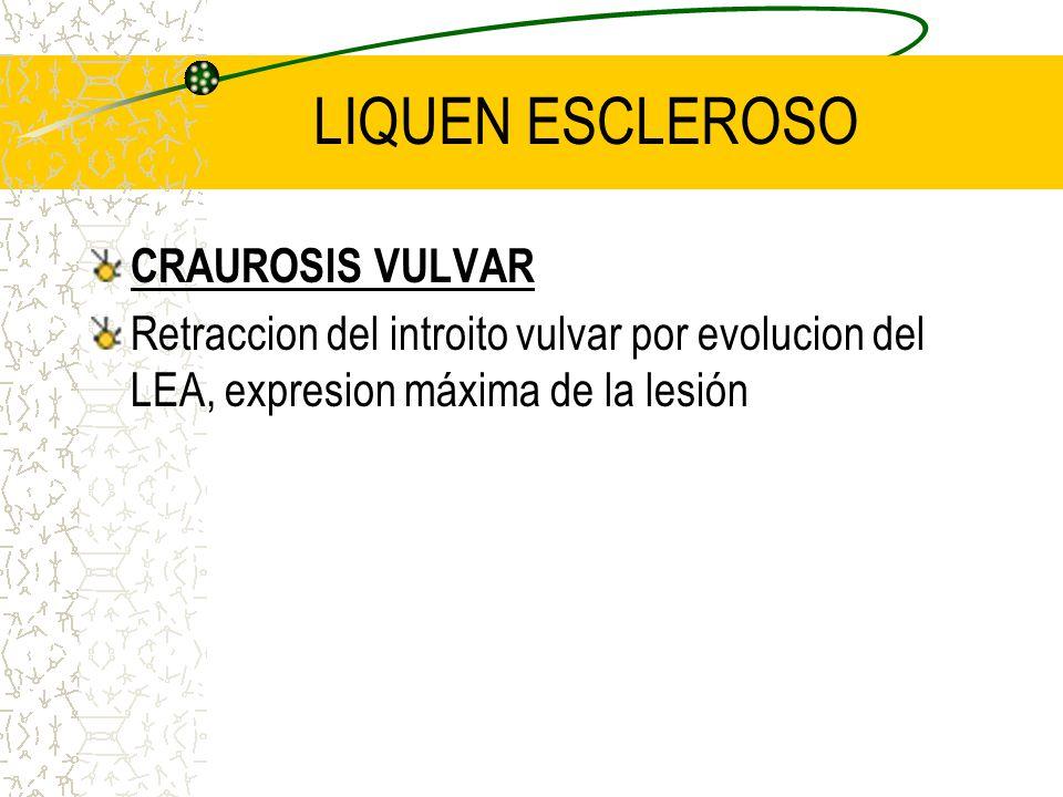 LIQUEN ESCLEROSO CRAUROSIS VULVAR