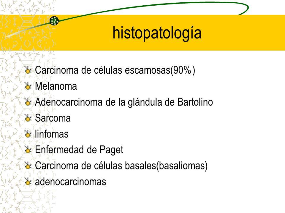 histopatología Carcinoma de células escamosas(90%) Melanoma